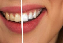 Know best home remedies to whiten teeth naturally