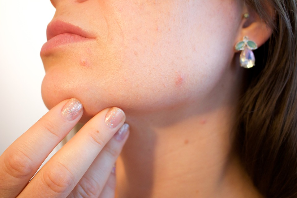 cismis get rid of pimples - Acne Problem: 5 ways to Get Rid of Pimples in Just 5 hours